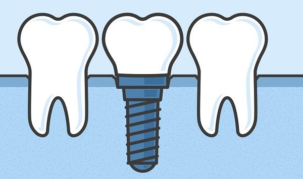 Implanty zębowe – zagwarantuj sobie piękny uśmiech na lata