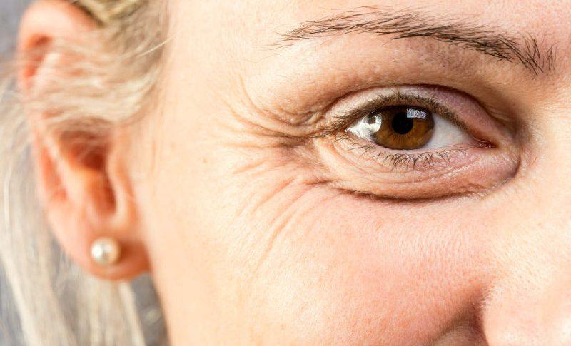 Krem przeciwzmarszczkowy – działanie, składniki, dobór