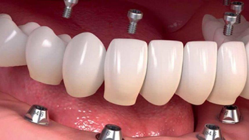 Proteza na implantach – jak zadbać o swoje zdrowie, piękny uśmiech i komfort psychiczny
